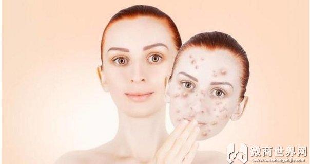 艾草洗脸对激素脸修复有帮助吗、