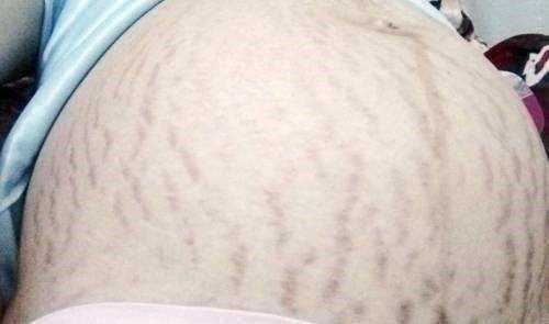 【妊辰纹图片】 可是挺吓人的,除纹要趁早